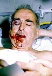 RobertFaurissonpicchiato, Robert Faurisson sur son lit d'hôpital, après l'agression du 16 septembre 1989.jpg